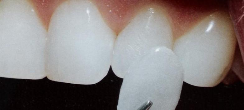 Наращивание зубов в стоматологии в Туле, отзывы