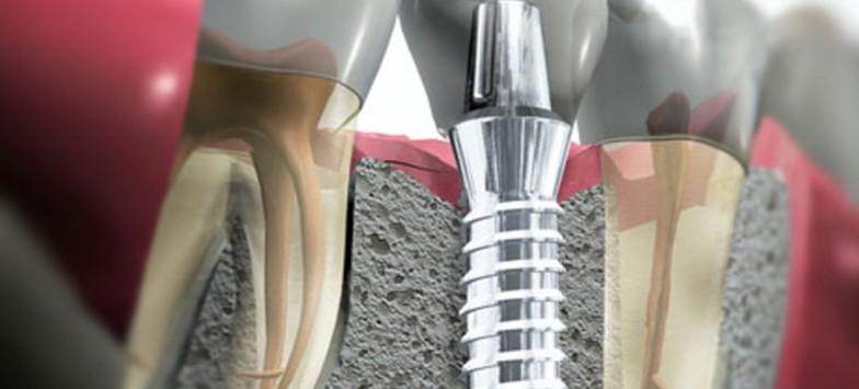 Имплантация зубов в Туле | АО Стоматолог