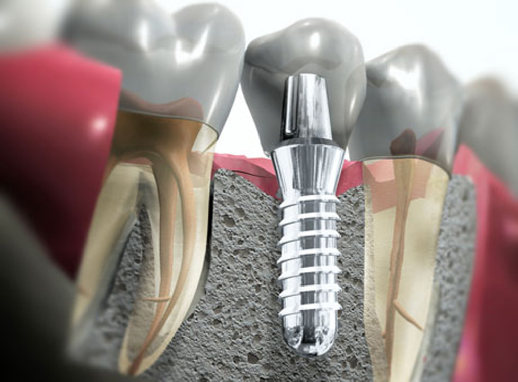 Имплантация зубов в туле на смидович