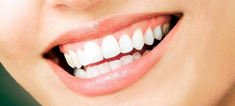 Тульская улыбка ярче голливудской. Лечение зубов в Туле