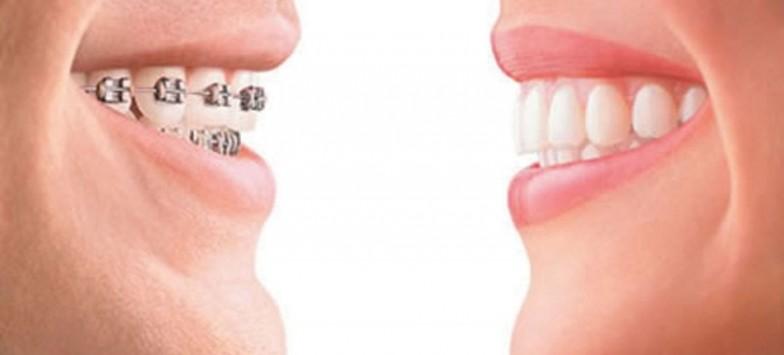 Брекет-системы и цены на них в стоматологии Тулы
