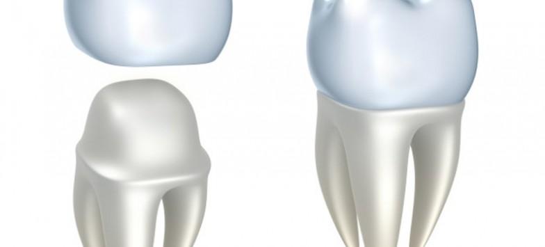 Коронка на зуб как вид протезирования зубов