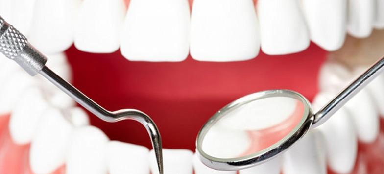 Киста зуба – особенности диагностики и лечения в стоматологии в Туле