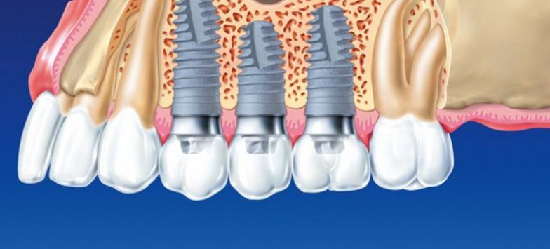 Зубные импланты и имплантация зубов