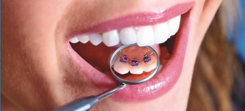 Исправление прикуса в центре стоматологии в Туле