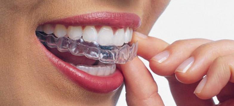 Брекеты для взрослых — рекомендации от центра стоматологии