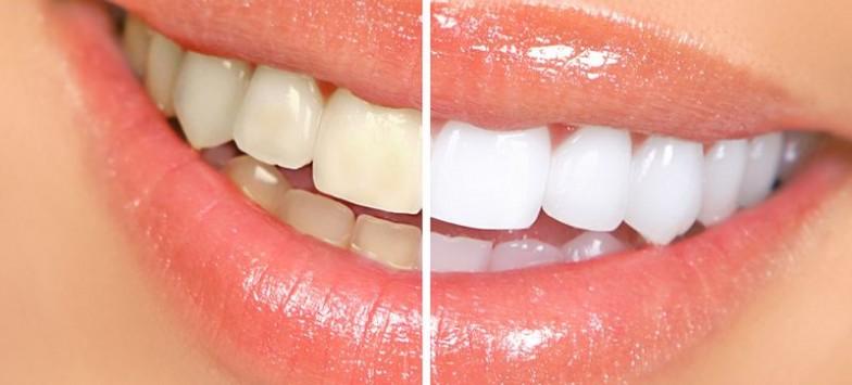 Чистка зубов air flow: преимущества
