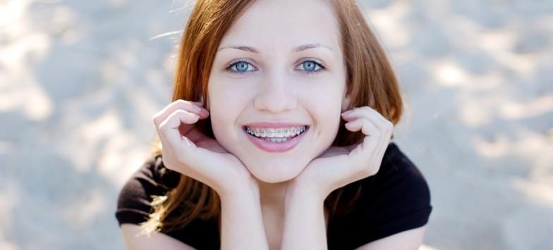 Брекеты Damon в стоматологической клинике