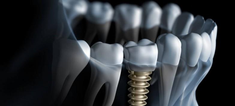 Вживление имплантов зубов